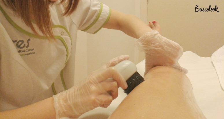 clinica_cres_bilbao_tratamiento_celulitis_buscolook
